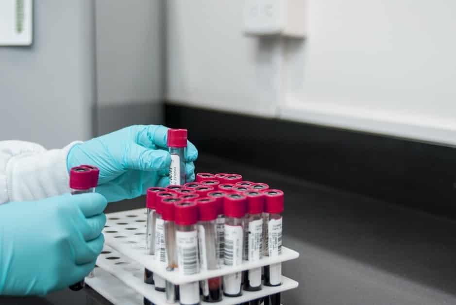 Ce qu'il faut savoir sur les tests moléculaires