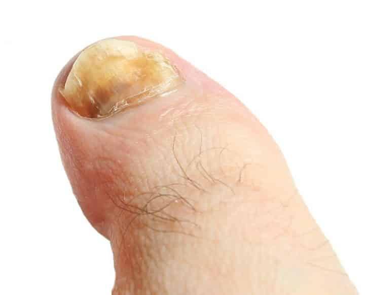 Quels sont les symptômes de la mycose des ongles des pieds?