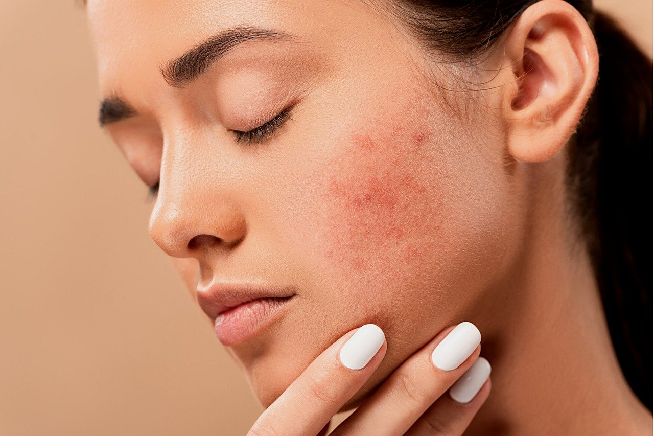 Comment se débarrasser de l'eczéma sur le visage ?