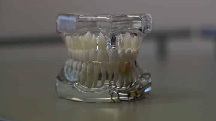 Quel est le coût d'une prothèse dentaire ?