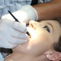 Facettes dentaires : définition, utilité et indications