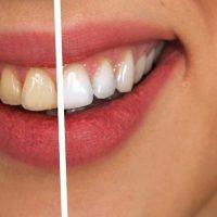 Comment font les stars pour avoir des dents blanches ?