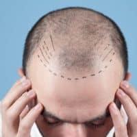 Greffe de cheveux : solution efficace contre l'alopécie
